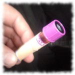 Blutprobe von Aurela für die Stammzellenspendersuche